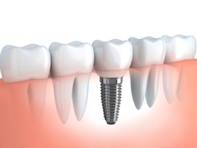 A Diagram of A Dental Implant | Dental Implants in St. Paul, MN