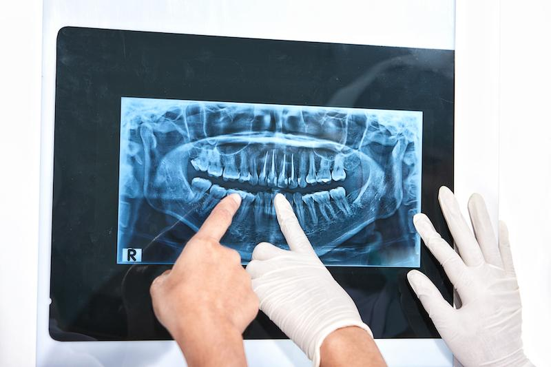 Hands Point To An X-Ray Image | Emergency Dental Care St. Paul MN