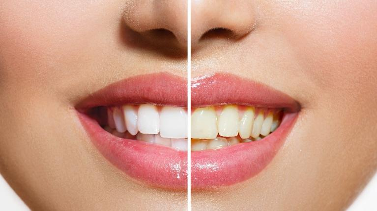 a before and after image of a teeth whitening patient | teeth whitening St. Paul