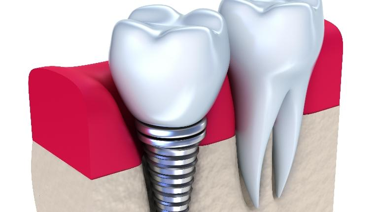dental implants st. paul mn