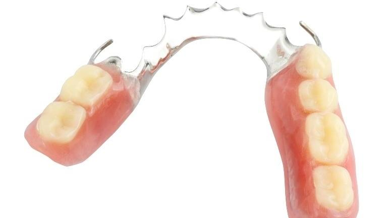 a partial denture sits on a white backdrop | st. paul dentures and partials