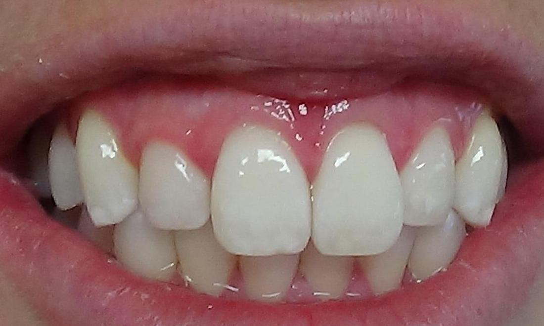microabrasion teeth whitening st paul mn