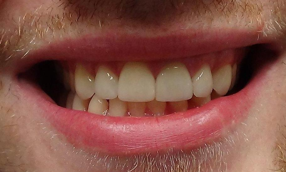 dental veneers st paul mn