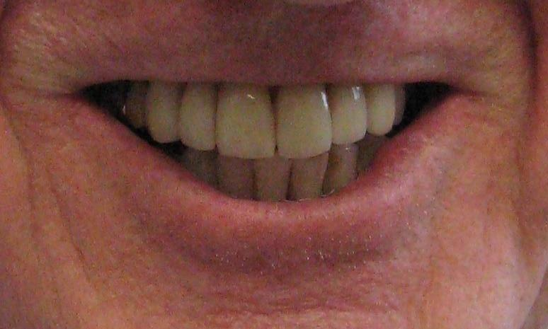 porcelain crowns and veneers st paul mn
