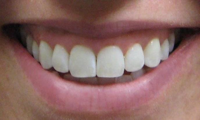 Micro abrasion followed by whitening helped this patient achieve a more beautiful smile.