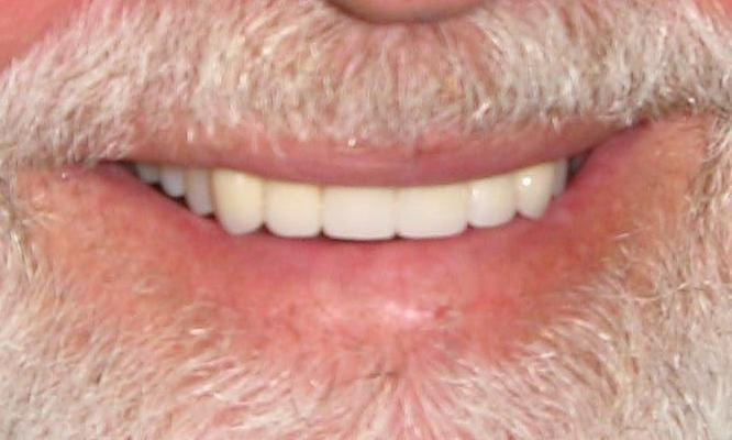 fixing chipped teeth with porcelain crowns