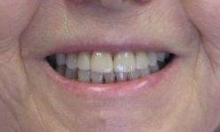 A gap fixed with porcelain veneers!