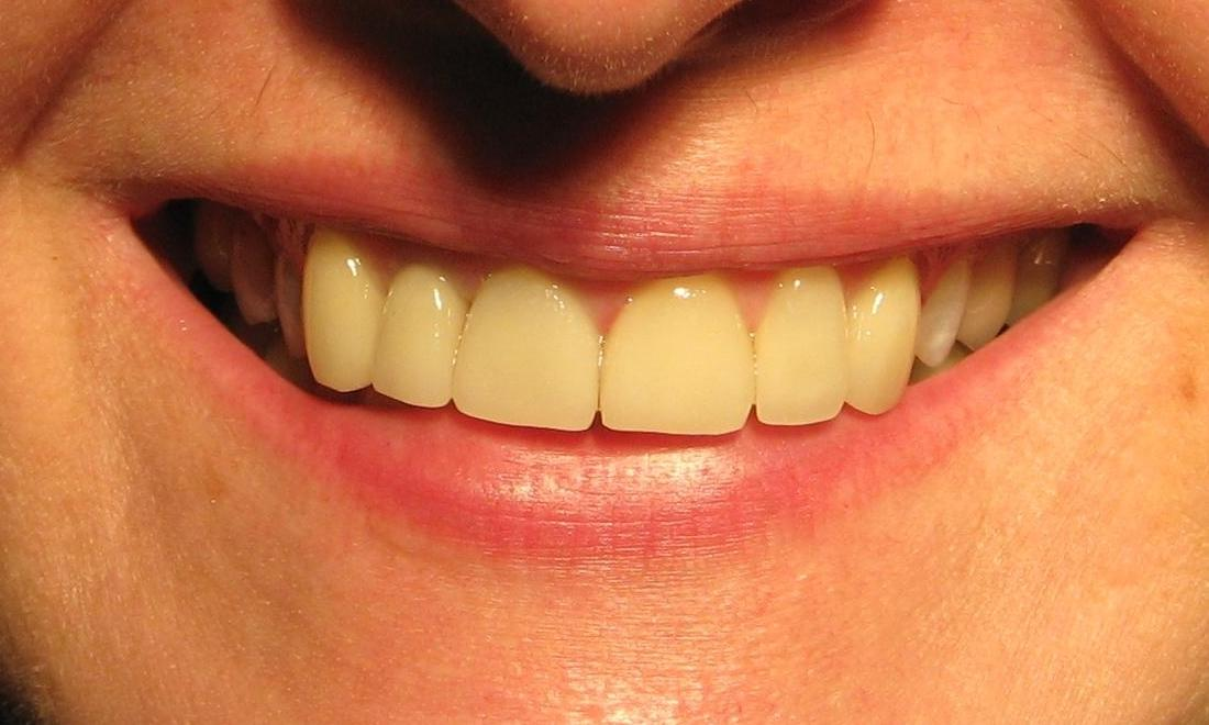 Porcelain Veneers and Crown