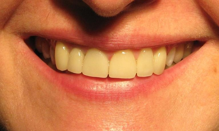 A-smile-restored-with-porcelain-veneers-and-a-crown-After-Image
