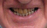 Crowns-and-veneers-gave-this-patient-a-brighter-smile-Before-Image