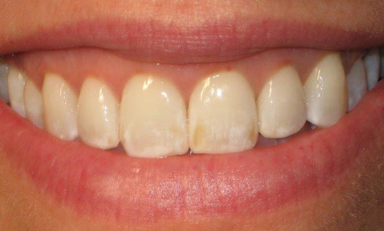 Micro-Abrasion-followed-by-Whitening-Before-Image