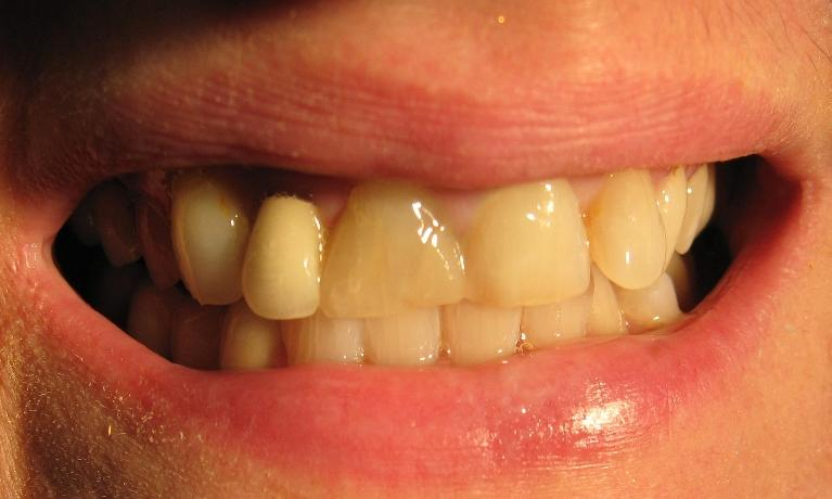 A-smile-restored-with-porcelain-veneers-and-a-crown-Before-Image